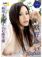 Beautiful Genes Yui Matsuno